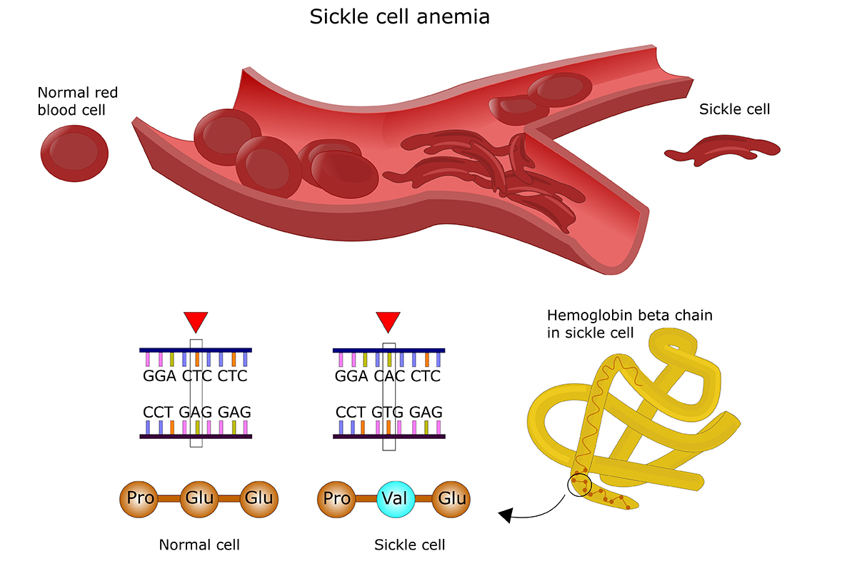 web-sickle-cell-infographic-002-shutterstock_211264888