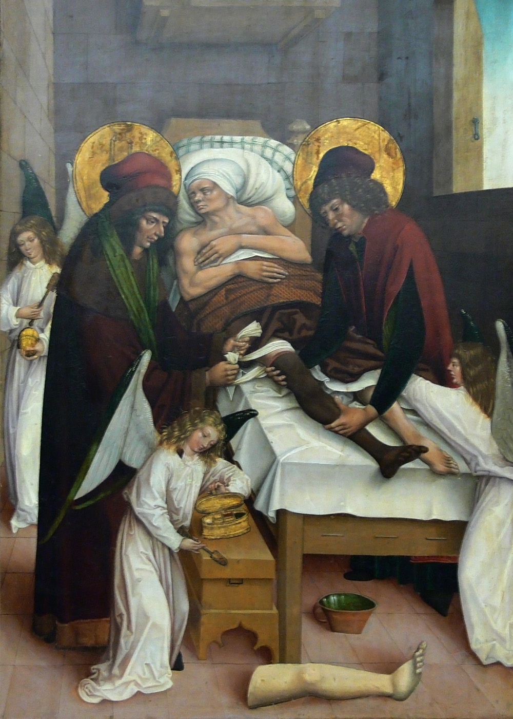COSMOS AND DAMIEN,TWINS,DOCTORS,PHYSICIANS,TRANSPLANT,LEG